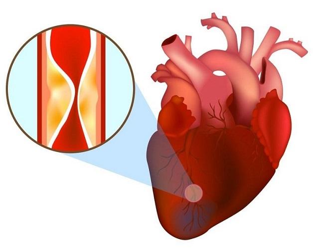 Xơ vữa động mạch và sự hình thành cục máu đông là những nguyên nhân chủ yếu gây tắc mạch vành tim.