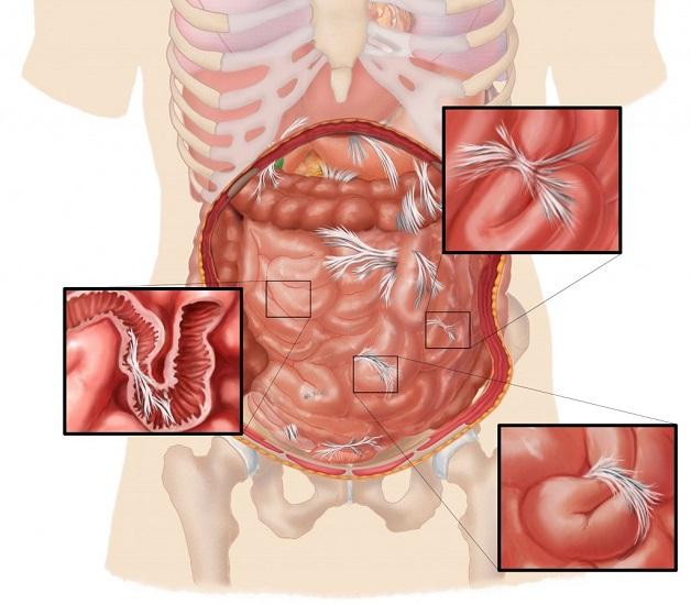 Tắc ruột non xảy ra do liệt ruột vô động lực hoặc nguyên nhân cơ học
