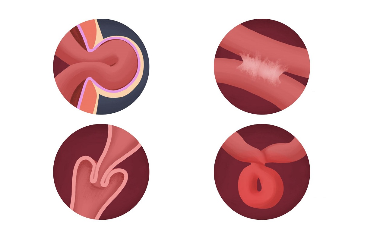 Tắc ruột non được phát hiện và điều trị như thế nào?