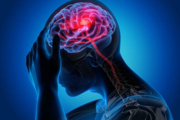 thiếu máu não gây đau nửa đầu kéo dài