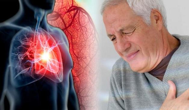 Nhồi máu cơ tim chiếm 30% trường hợp tử vong vì bệnh tim mạch.