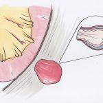 Tìm hiểu thoát vị bẹn triệu chứng là gì và cách điều trị