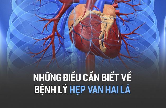 Hẹp van hai lá là một trong những bệnh lý van tim phổ biến nhất.