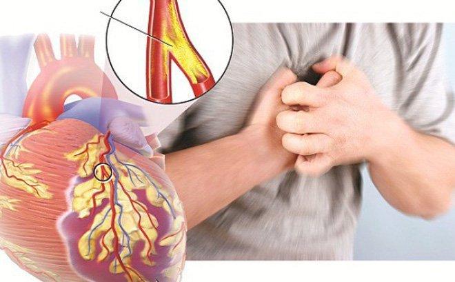 Khi hẹp mạch vành xảy ra, động mạch dần dần bớt sự đàn hồi và trở nên hẹp, cứng hơn.