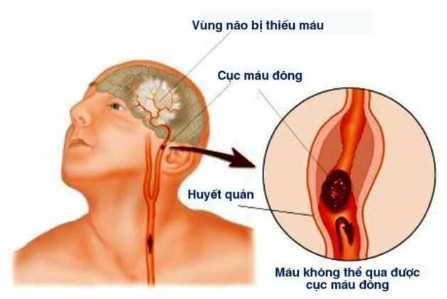 Bệnh thiếu máu não còn được gọi với tên khác là thiểu năng tuần hoàn não.