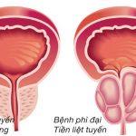 U xơ tuyến tiền liệt ở nam giới: Dấu hiệu và cách điều trị hiệu quả