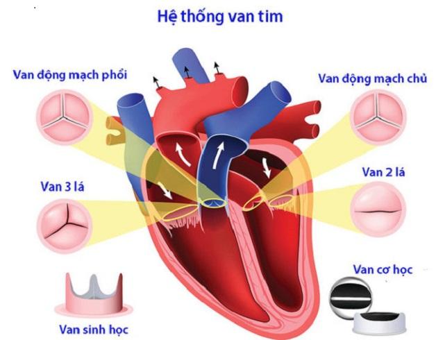 Hẹp van động mạch phổi là tình trạng van tim nằm giữa tâm thất phải và động mạch phổi không thể mở được hoàn toàn để tống máu tới động mạch phổi.