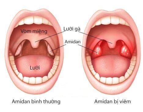Viêm Amidan là gì