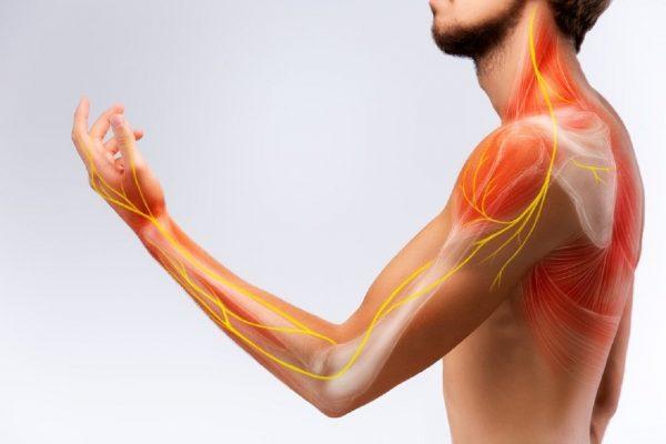 viêm dây thần kinh điều trị thế nào?