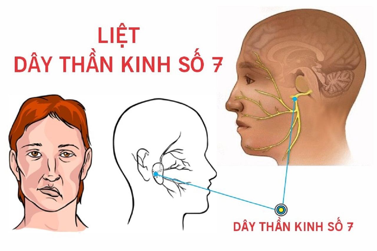 Hiểu đúng về viêm dây thần kinh số 7