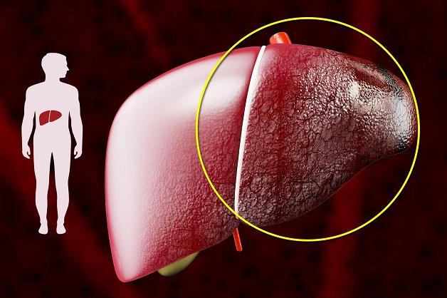 Viêm gan B mãn tính biến chứng xơ gan, ung thư gan