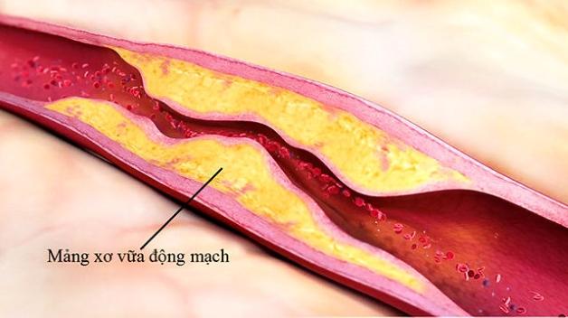 Thành động mạch vành trở nên dày, cứng, đồng thời lưu lượng máu đến nuôi các cơ quan và mô trong cơ thể bị hạn chế.