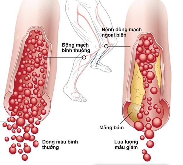 Xơ vữa động mạch chi dưới là hiện tượng tích tụ chất béo ở động mạch chân, làm giảm lượng máu nuôi chi.