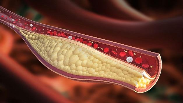 Xơ vữa động mạch là tình trạng tích tụ cholesterol, canxi trên thành động mạch, khiến máu chảy qua khó khăn do lòng mạch bị thu hẹp.