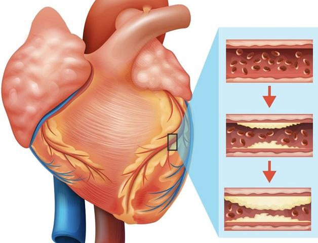 Bệnh mạch vành là tình trạng lòng mạch bị thu hẹp, cản trở quá trình cung cấp máu nuôi dưỡng cơ tim.