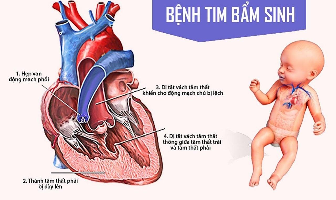 Người bị bệnh tim bẩm sinh sống được bao lâu?