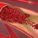 Bệnh tim thiếu máu cục bộ: Đặc điểm và cách điều trị