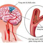 Bị thiếu máu não: xử trí sai cách tai hại khó lường