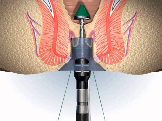Phương pháp cắt trĩ Longo giúp bệnh nhân bớt đau hiệu quả