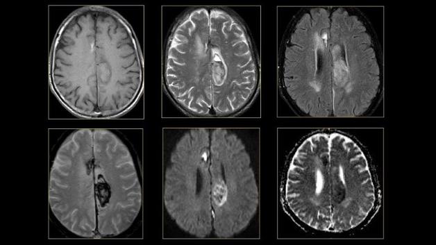 Phương pháp này giúp chẩn đoán chính xác các bệnh về não và thần kinh