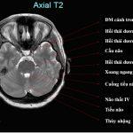 Vai trò của chụp MRI sọ não trong chẩn đoán và điều trị bệnh hệ thần kinh