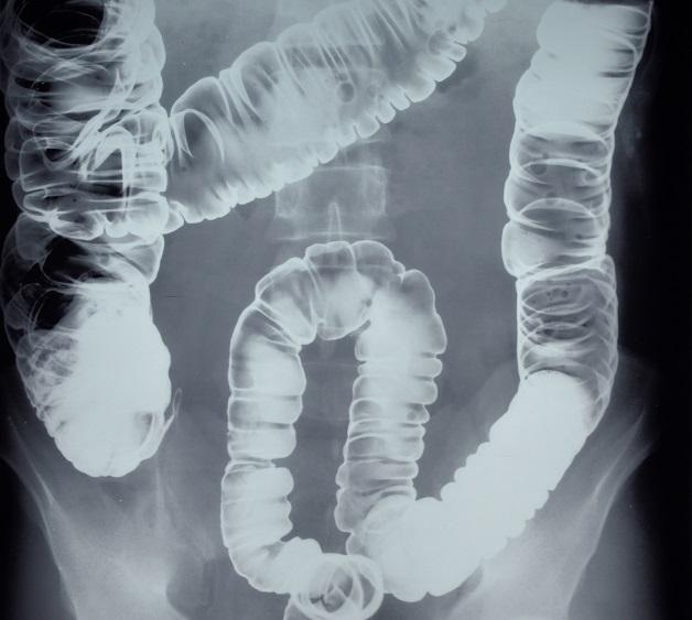 Chụp X quang đại tràng có cản quang