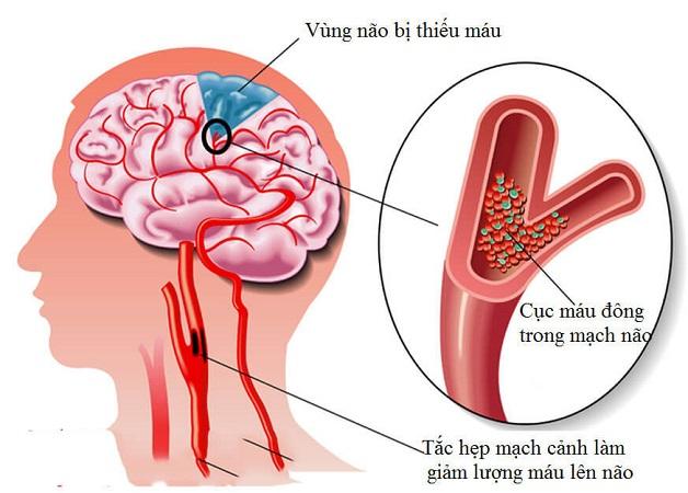 bị thiếu máu não diễn ra thế nào