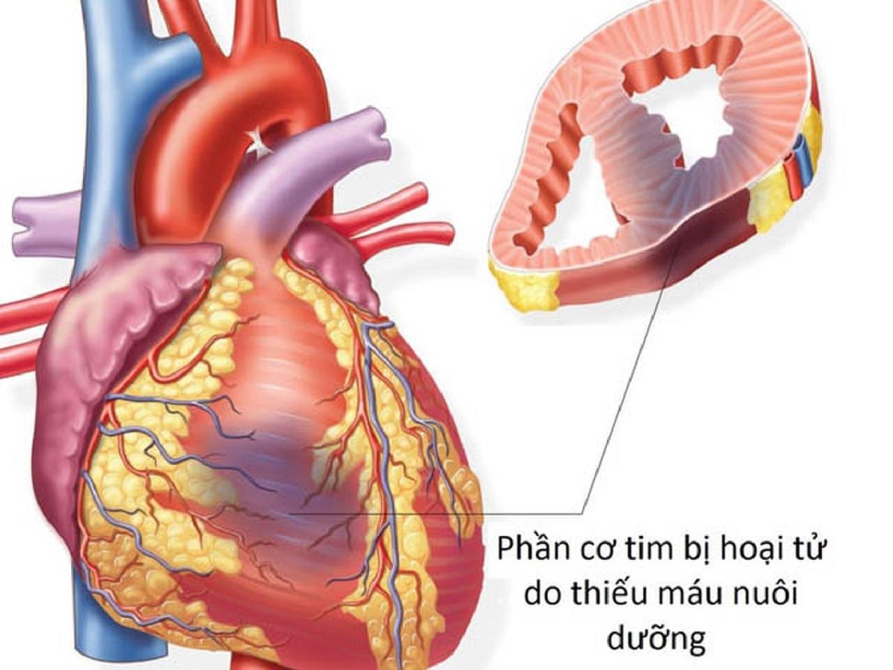 Nhồi máu cơ tim thành dưới: Chẩn đoán và điều trị
