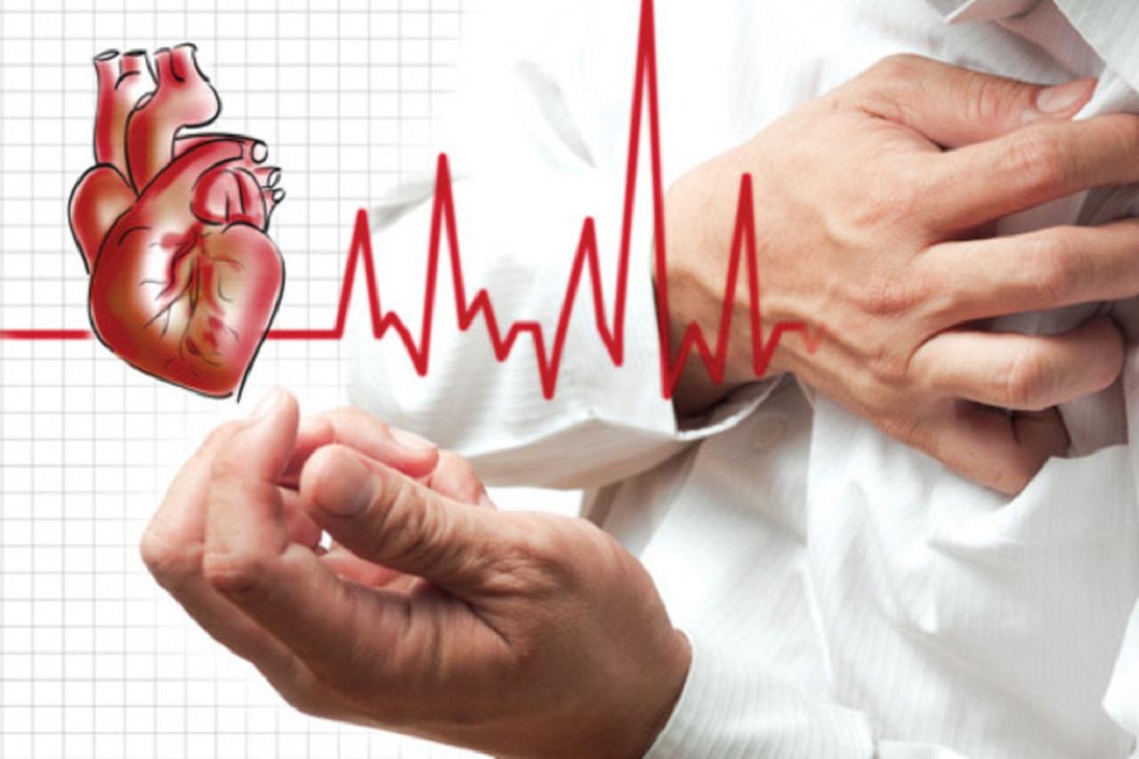 Những điều cần biết về nhồi máu cơ tim cấp ST chênh lên