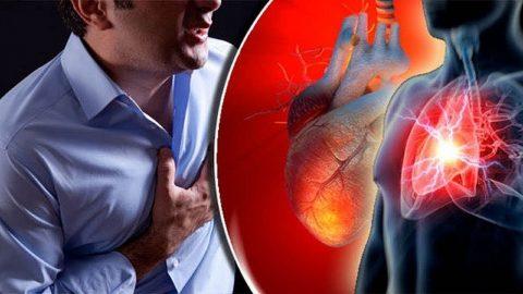 Nhồi máu cơ tim type 2 là gì? Nguyên nhân và cách điều trị