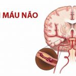 Thiếu máu não nguyên nhân gây đột quỵ não