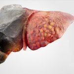 Xơ gan có nguy hiểm không và gồm những giai đoạn nào?